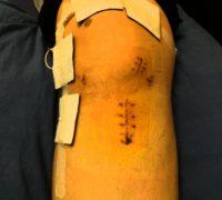 apokatastasi-fysiotherapeia-fysiotherapeutirio-1