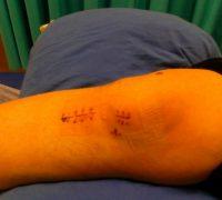 apokatastasi-fysiotherapeia-fysiotherapeutirio-9